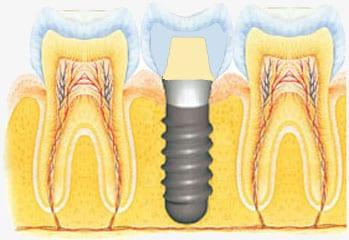 vaste grond voor een implantaat: het kaakbot
